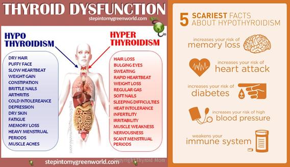 hypothydoidism
